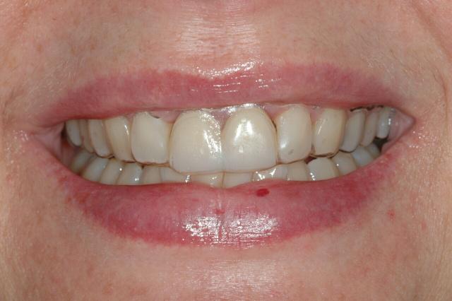Implant Temporary Teeth -Dr  Hum  Ottawa Prosthodontist